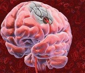 Применение холинергической фармакотерапии при ишемических инсультах в вертебробазилярном бассейне