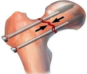 Морфологические аспекты использования металлоконструкций при иммобилизационном остеопорозе