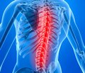Боль в спине. Как предупредить ее хронизацию?