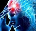 Реабілітація після інсульту: види інсультів