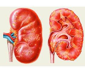 Особливості змін показників клітинної  та гуморальної ланок системного імунітету  у хворих на гострий пієлонефрит