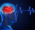 The role of neuroprotection in the treatment of ischemic stroke in a closed therapeutic window