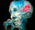 Применение блокатора глутаматных рецепторов амантадина в неврологии