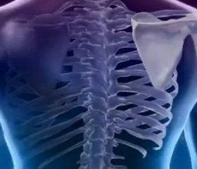 Остеопороз при гонартрозе и коксартрозе