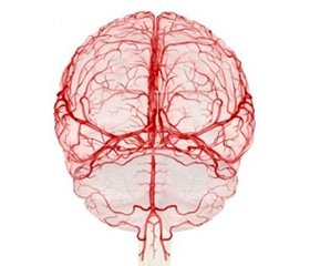 Correlation of Mortality of Patients in Acute Cerebrovascular Accident with Laboratory and Functional Parameters