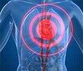 Роль раннего остеосинтеза в профилактике илечении синдрома жировой эмболии