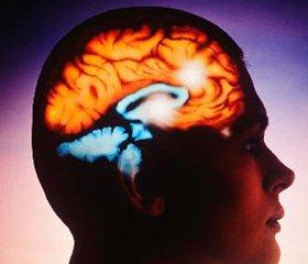 Нейропротективный эффект цитиколина у больных с ишемическим инсультом