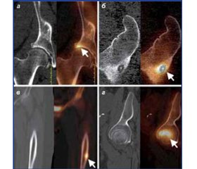 The role of hybrid SPECT/CT imaging in the diagnostic monitoring of patients with pathology of the bones of the lower limbs (review of literature)