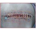 Ефективність аналгезії поперечного площинного блока (ТАР — transversus abdominis plane block) після абдомінальної хірургії в дітей