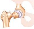 Профилактика тромбоэмболии при лечении переломов проксимального отдела бедренной кости в условиях районного травматологического отделения