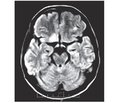 MRI Semiotics of Wernicke-Korsakoff Syndrome in Patients with HIV