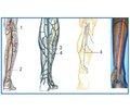 Пластика обширных ран стоп мегалоскутами на суральной артерии с использованием Рropeller-техники