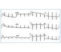 Синдром Велленса: значимость в повседневной клинической практике (случаи из практики)