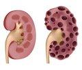 Рекомендації щодо застосування толваптану при аутосомно-домінантному полікістозі нирок: затвердження позицій від імені Робочої групи зі спадкових захворювань нирок ERA-EDTA і European Renal Best Practice