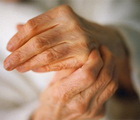 Ревматоидный артрит: диагностика, клиника, лечение