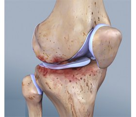 Determination knee synovial membrane in patients with rheumatoid arthritis