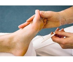 Diabetes mellitus in the practice of an anesthesiologist: a focus on diabetic neuropathy