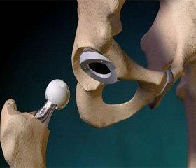 Аналіз етіопатогенетичного аспекту асептичного некрозу головки стегнової кістки