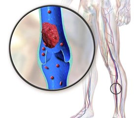 Rational pharmacological bemiparin prophylaxis of venous thromboembolism in cancer patients