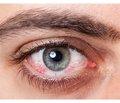Современные возможности диагностики и лечения синдрома сухого глаза при дисфункции мейбомиевых желез ивоспалительных заболеваниях передней поверхности глаза