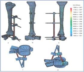 Анализ напряженно-деформированного состояния дистального отдела голени и стопы при повреждениях pilon в условиях наружной фиксации при помощи стержневых аппаратов