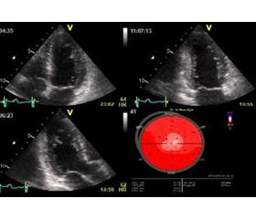 Factors associated with restoration of the right ventricle function according to 2D-speckle-tracking echocardiography in patients with acute pulmonary embolism