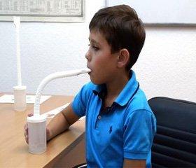Показники атопічної реактивності у дітей шкільного віку, які хворіють на бронхіальну астму фізичного напруження