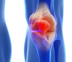 Comprehensive physical rehabilitation of patients with dysplastic deformities of the knee joint