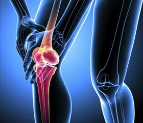 The role of combined chondroprotectors in the comprehensive treatment of osteoarthritis