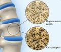 Вплив системного остеопорозу на репаративну регенерацію кісткової тканини