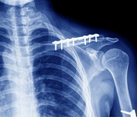 Clavicle fracture fixations in patients with flail chest and polytrauma
