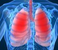 История заболевания туберкулезом в стихах