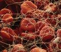 Застосування транексамової кислоти при шлунково-кишкових кровотечах