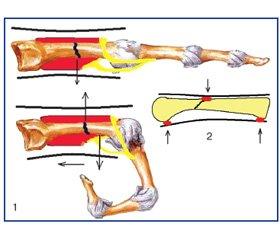 Функціональна пов'язка для лікування переломів п'ясних кісток