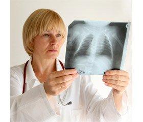 Глутаміл-цистеїніл-гліцин динатрію якпрепарат для корекції біохімічних порушень в організмі та можливості його застосування при хіміорезистентному туберкульозі легень