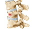 Баллонная кифопластика в хирургии повреждений позвоночника