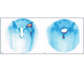 Основные остеосцинтиграфические параметры операбельности при эндопротезировании тазобедренных суставов