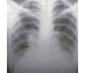 Дифференциальная диагностика двусторонней пневмонии с туберкулезом легких