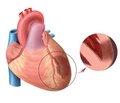 Омоложение инфарктов миокарда и инсультов: современные методы профилактики