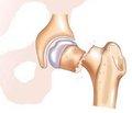 Предоперационная распространенность тромбоза вен нижних конечностей у больных с переломами шейки бедренной кости