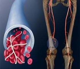 Питання лікування, вторинної профілактики тромбозу глибоких вен нижніх кінцівок ітромбоемболії легеневої артерії