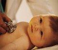 Стан соматичного здоров'я дітей раннього віку із синдромом Дауна