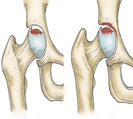 Application of cellular technologies in the treatment of the femoral head avascular necrosis