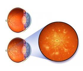 Оптикс Премиум— повышение эффективности лечения диабетической ретинопатии