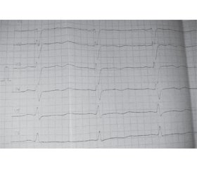 The first experience of using intra-aortic balloon counterpusation in early postoperative period after coronary artery bypass surgery in Chernihiv City Hospital 2