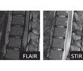 Випадок гострого мієліту як неврологічне ускладнення COVID-19