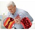 Сучасний погляд на патофізіологічні аспекти розвитку хронічної серцевої недостатності на тлі ішемічної хвороби серця