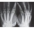 Помилки та ускладнення при лікуванні пацієнтів з переломами п'ясних кісток