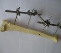 Лечение переломов длинных трубчатых костей наружным фиксационным аппаратом