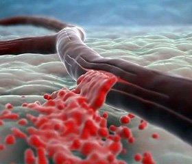 Применение Эсциталопрама   у больных после ишемического инсульта